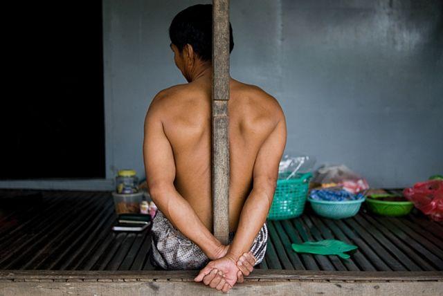 scars-of-cambodia2